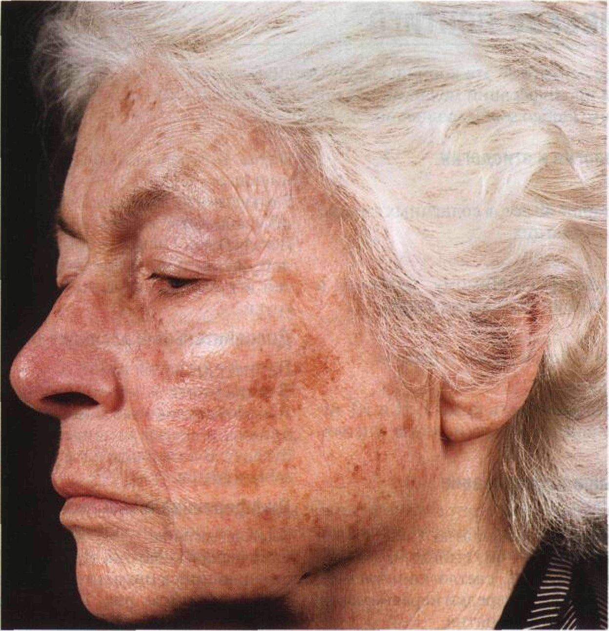 фотостарения кожи фото просто приобрести новые